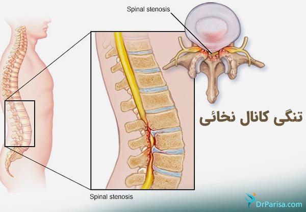 تنگی کانال نخاع از علل درد سیاتیک