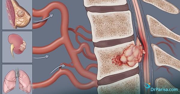 تومور مهره و سیاتیک