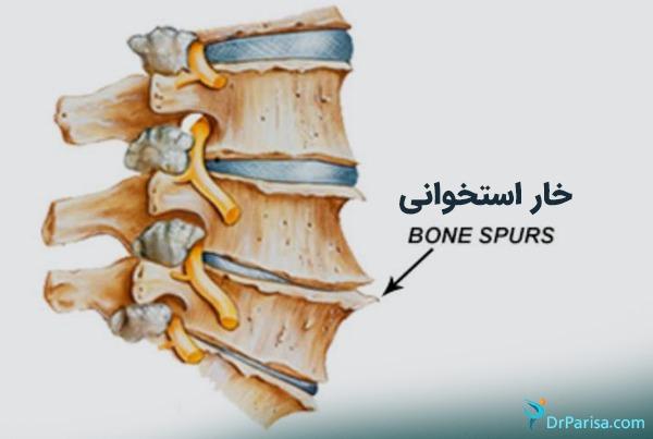 خوار استخوانی 2
