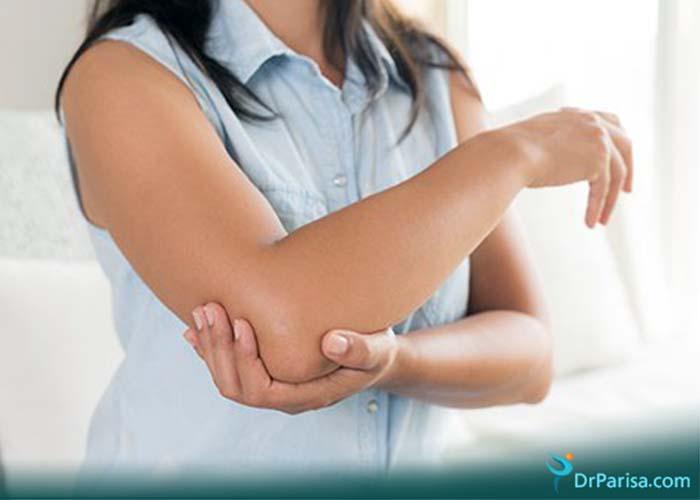 دردهای آرنج
