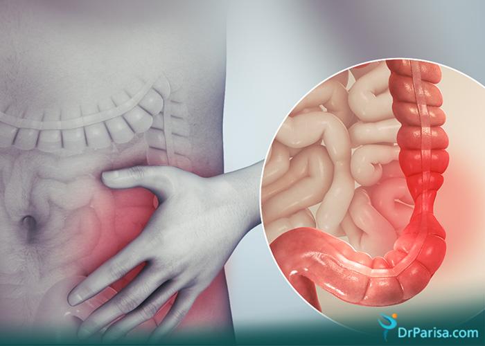درد لگن به علت سندروم روده تحریک پذیر
