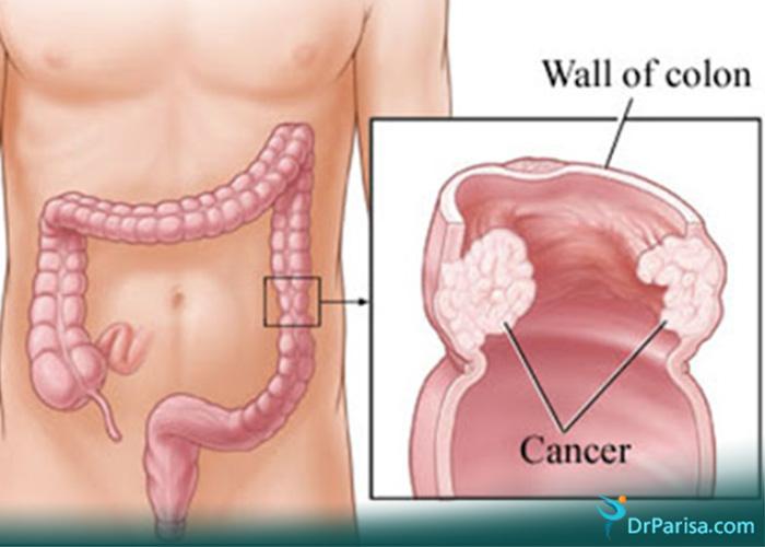 درد لگن به علت سرطان کولون